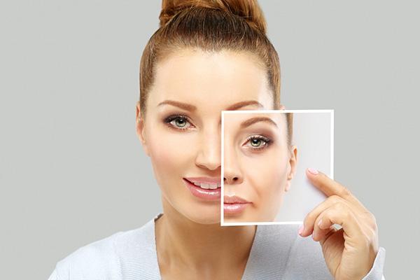 medical laser woman