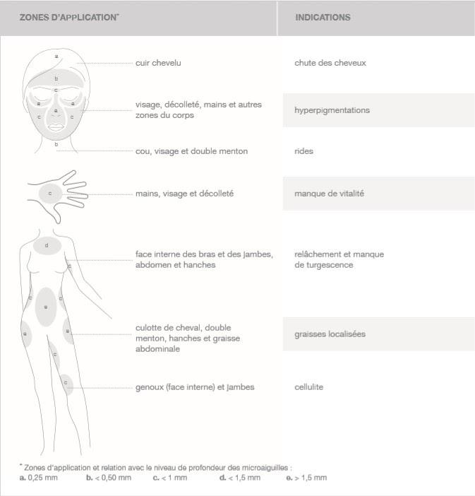 microneedling zones visage et corps traitement